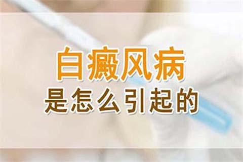 烟台开发区白癜风皮肤医院