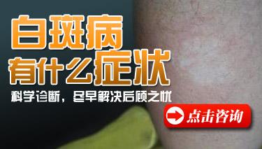 白斑病有什么症状