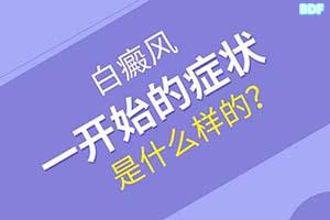 早期白癞风发病时有哪些症状的表现,都问专家赵毅