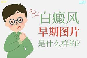 早期白癞风皮肤疾病发病症状